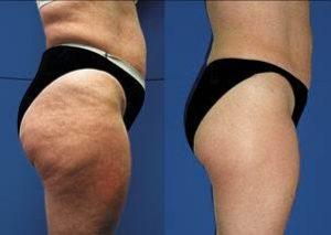 cellulite prima e dopo i trattamenti