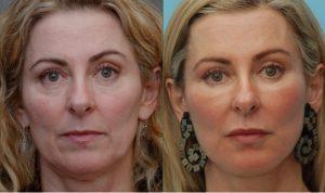 prima-e-dopo-lipofilling-viso